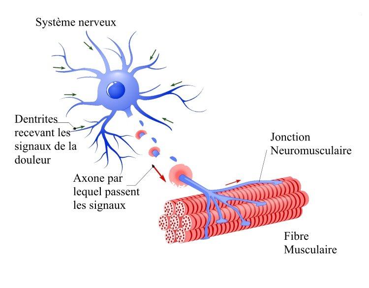 Schéma Fibromyalgie